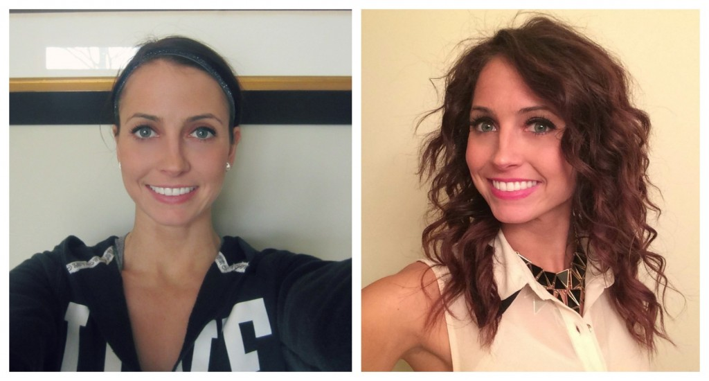 teeth whitening photos