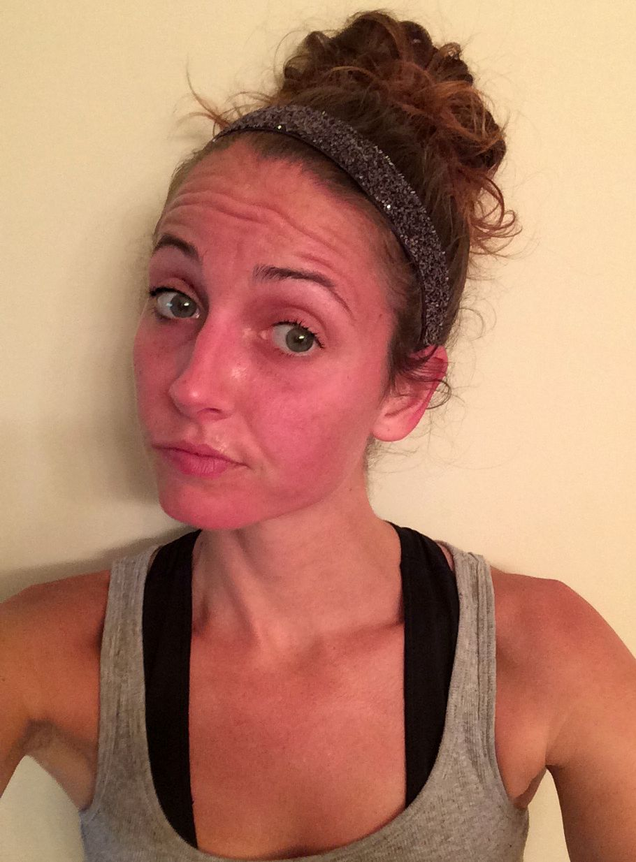 red face after run